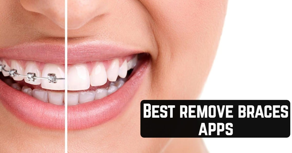 Best remove braces apps
